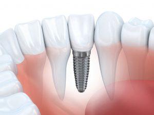 Lancaster implant dentist